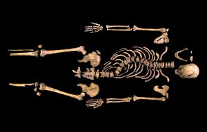 Richard's skeleton, with the giveaway curved spine.